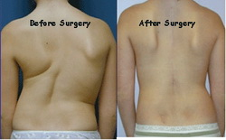 Scoliosis Surgery Complications
